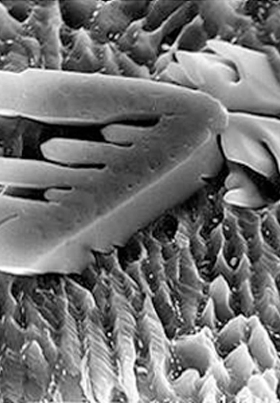 Scanning electron Microscopy